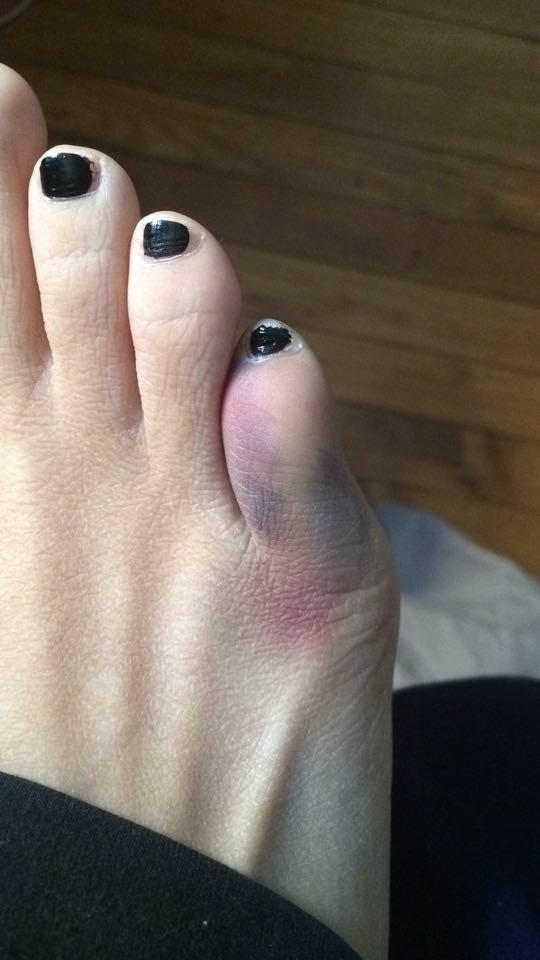 toe broken